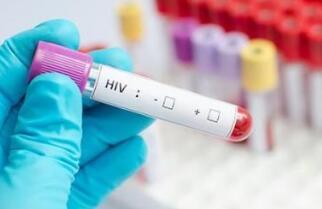 艾滋病检测