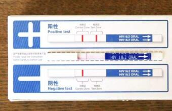 hiv检测