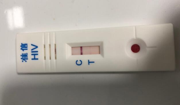 hiv包埋线